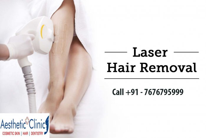 Laser Hair and Tattoo Removal – Aestheticplusclinic.In