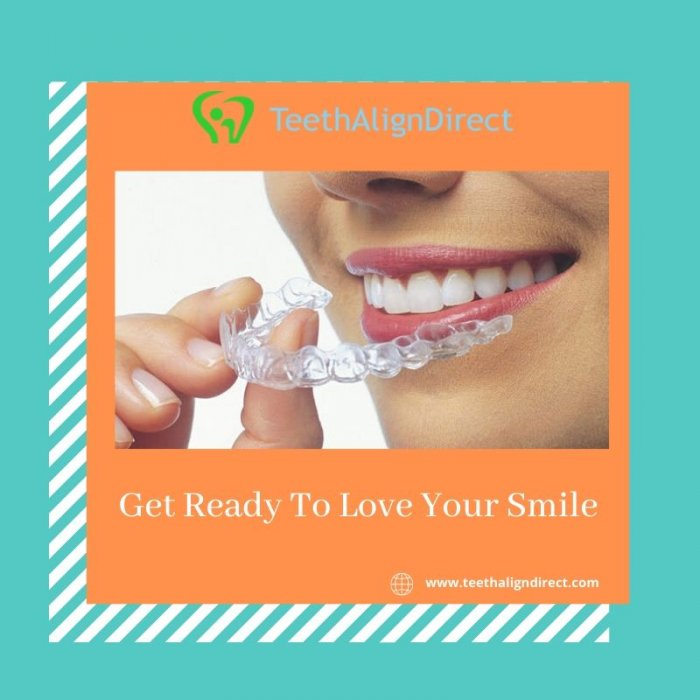 Get Online Teeth aligners in Rockford -TeethAlignDirect
