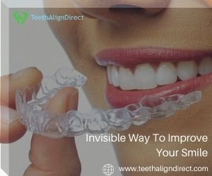 Order Online Invisible Braces in Santa FE- TeethAlignDirect