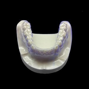 Get Teeth Aligners in Rockford at TeethAlignDirect