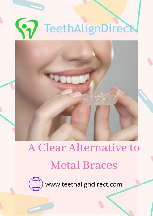 Get Online Invisible Aligners in Santa FE-TeethAlignDirect