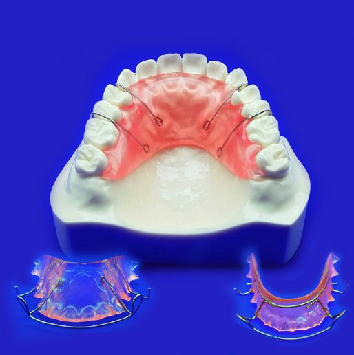 Maintain Your Smile Hawley Retainer|iHome Dental